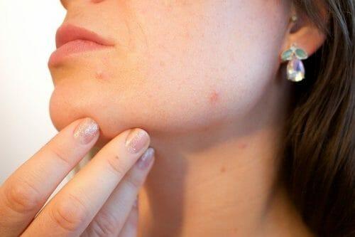Facialis-Treatment